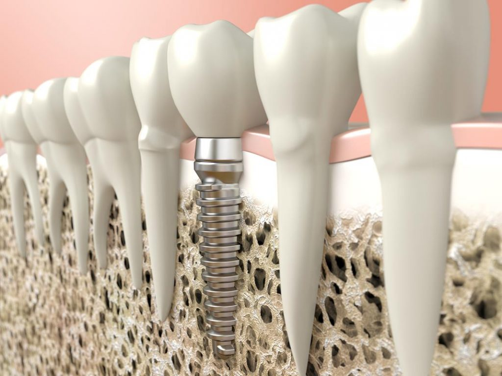 Why a bone graft is important, 3D diagram of a dental implant