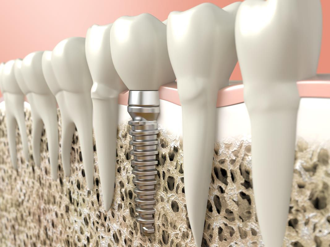 3D diagram of a dental implant