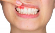 a woman with bleeding gums