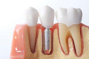 Cross section model of dental implan
