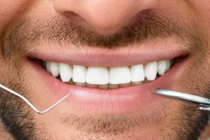 Close up of a man smiling with periodontal probe and mouth mirror.