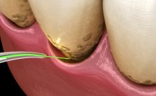 LANAP Laser Assisted New Attachment Procedure