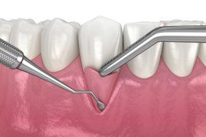 3D Rendering of a gum graft