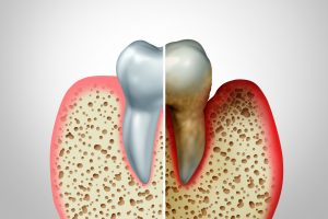 Healthy and diseased tooth illustration comparison