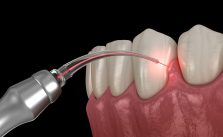 3D rendering of LANAP Non-surgical gum disease treatment alternative to gum surgery