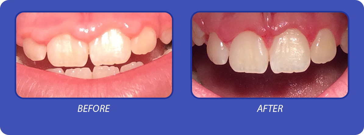 b-and-f-gingival